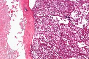 Alveolar_soft_part_sarcoma_-_low_mag